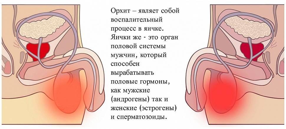 Орхит, орхоэпидидимит