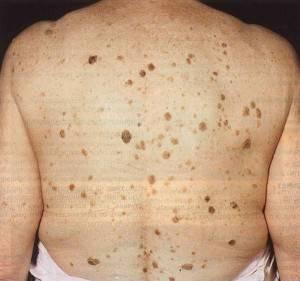Кератомы на спине причины и лечение