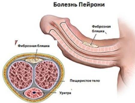 Болезнь пейрони - причины, классификация, симптомы, лечение и профилактика