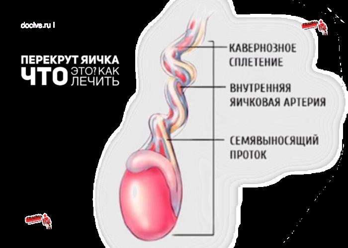 Перекрут яичка и его гидатиды: симптомы, лечение и осложнения