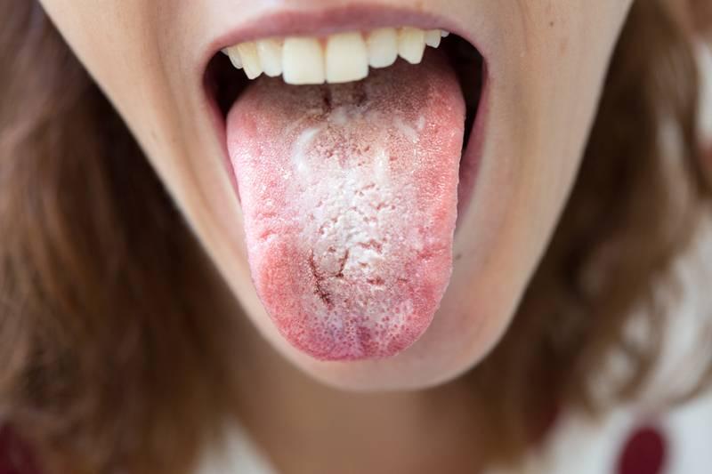 Кандидоз у мужчин: симптомы, принципы лечения, профилактика