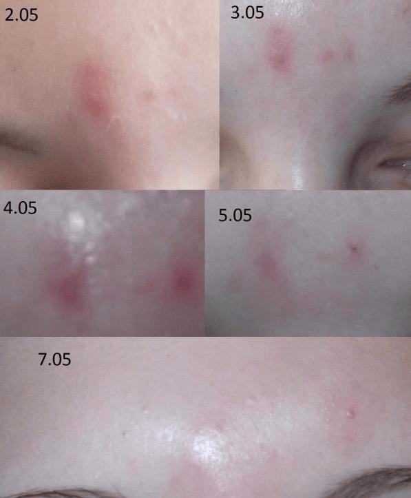 Мазь вишневского — помогает ли от прыщей на лице, реальные отзывы, применение