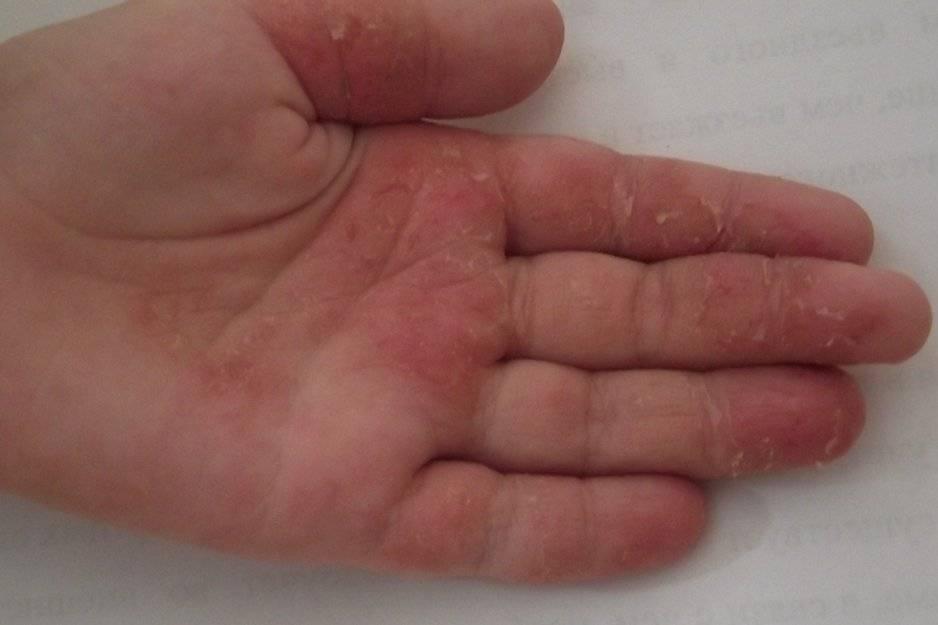Дерматит — в поисках причин возникновения и эффективного лечение (64 фото + видео)