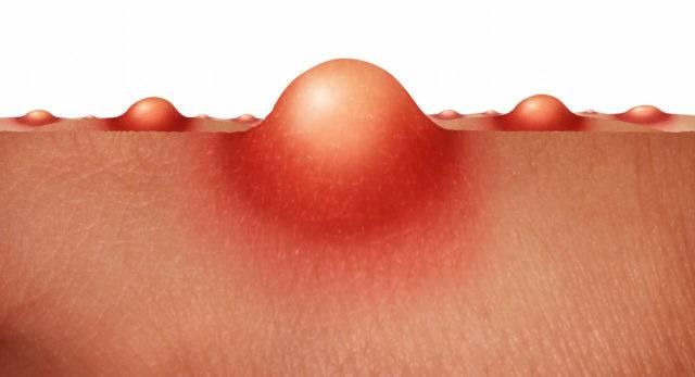Фурункул: симптомы, лечение фурункулеза, возможные осложнения
