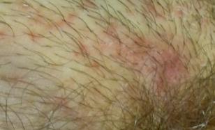 Красные пятна в паху у женщин: фото, причины, лечение