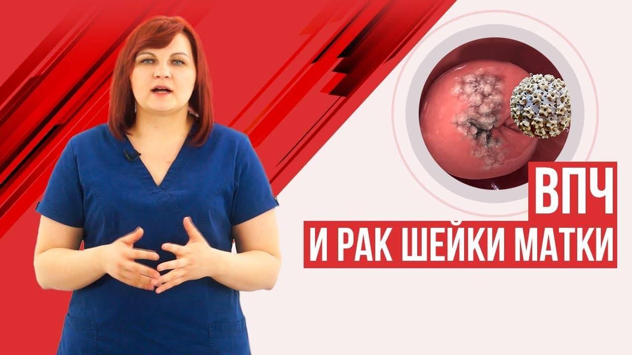 Что такое впч (вирус папилломы человека) 51 типа у женщин
