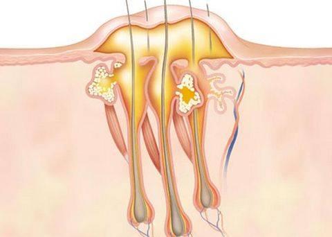 Фурункул в носу: причины, симптомы, лечение