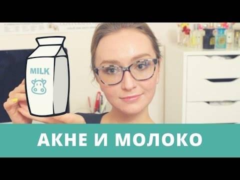 Прыщи от молочных продуктов: причины и что делать?