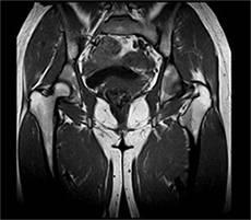 Мрт-диагностика предстательной железы: что показывает исследование простаты с контрастированием и без?