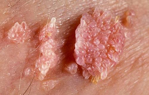 Особенности удаления папилломы в кишечнике