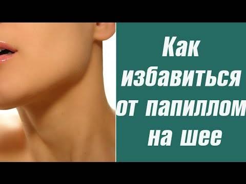 Как лечить папилломы на шее — эффективные препараты для перорального и наружного применения