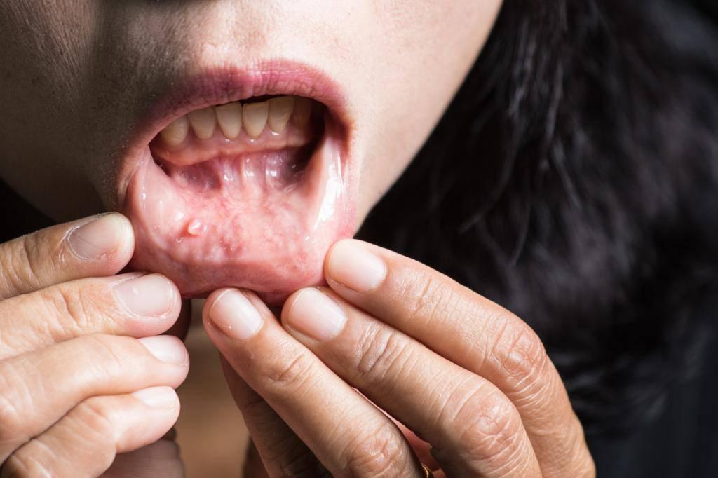 Папилломы: причины и лечение