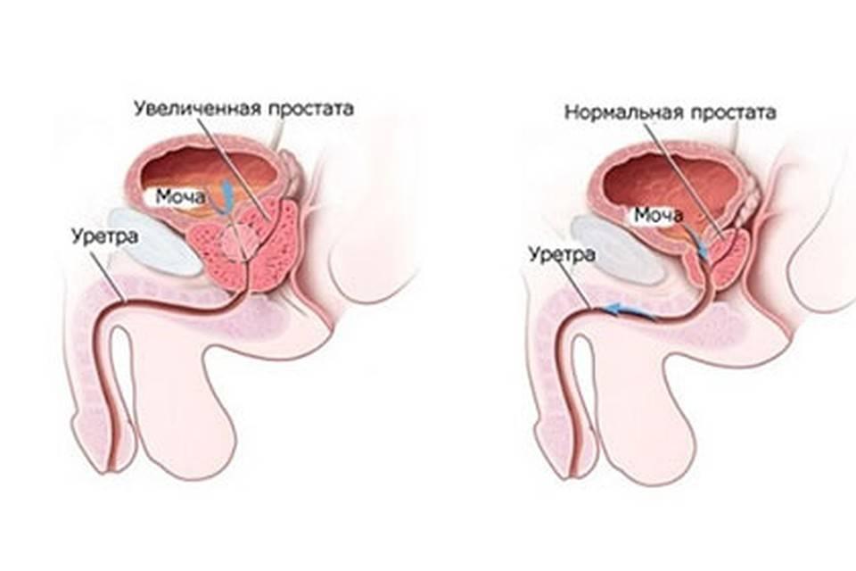 Какой врач лечит простатиты у мужчин