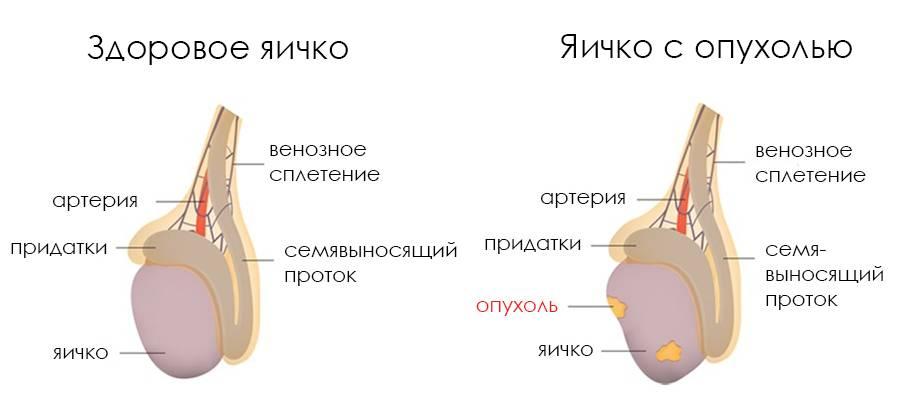 Воспаление яичка у мужчин: причины, диагностика и лечение