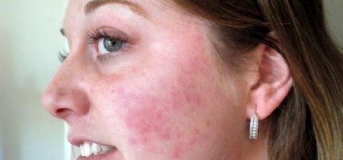 Болючие прыщи на лице: почему болят и что делать