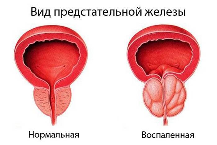 Простата форте менс формула (mans formula) для лечения простатита и аденомы
