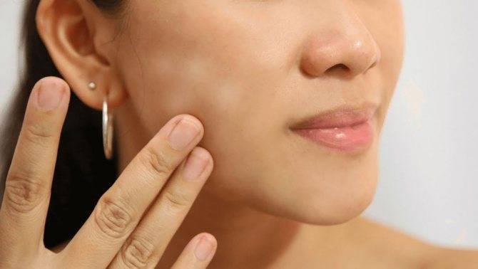 Причины и лечение красных пятен в интимных местах у мужчин