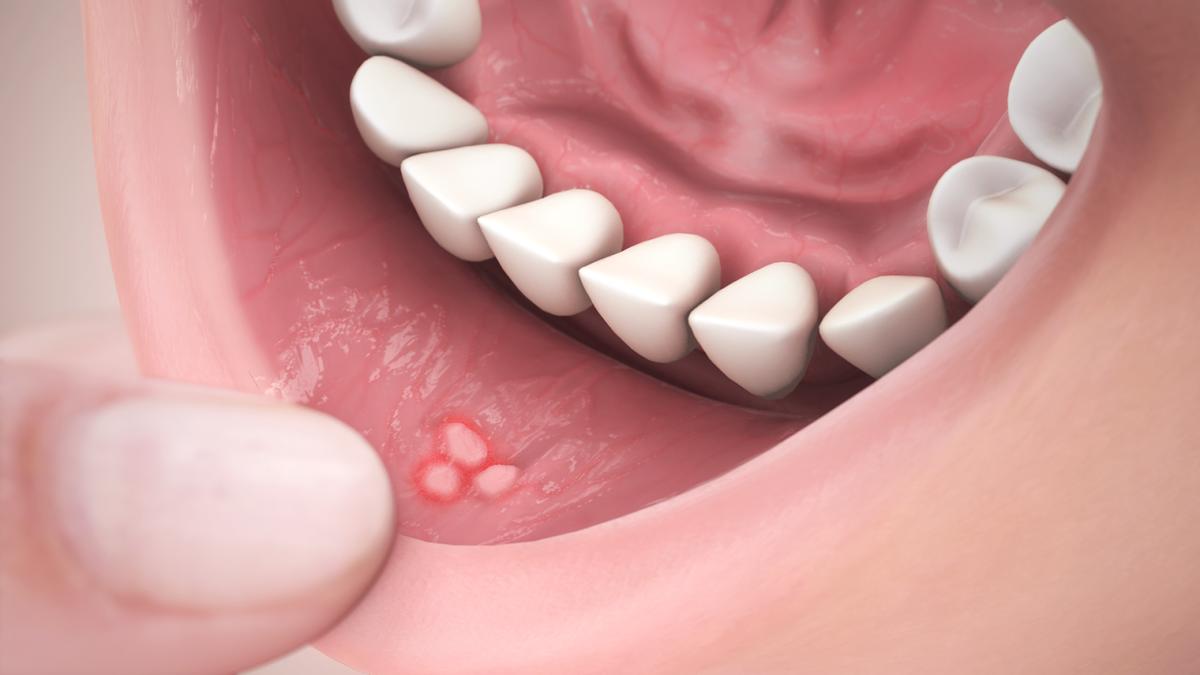 Причины появления и методы лечения прыщей на внутренней стороне губы