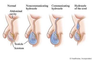 Почему болит яичко после операции на варикоцеле