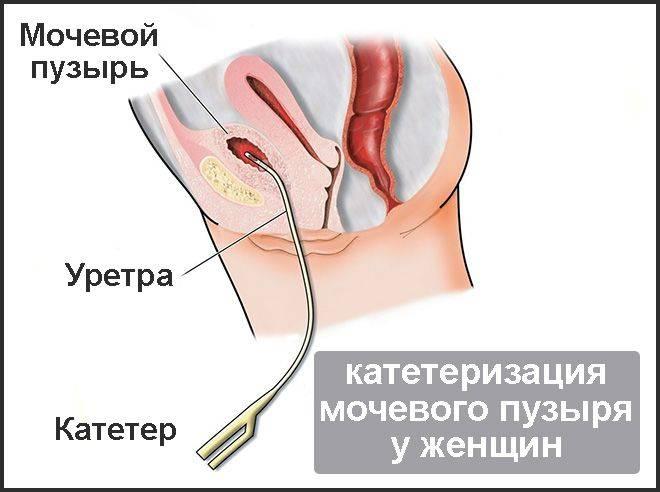 Постановка цистостомы: показания, ход и виды манипуляции, уход после операции