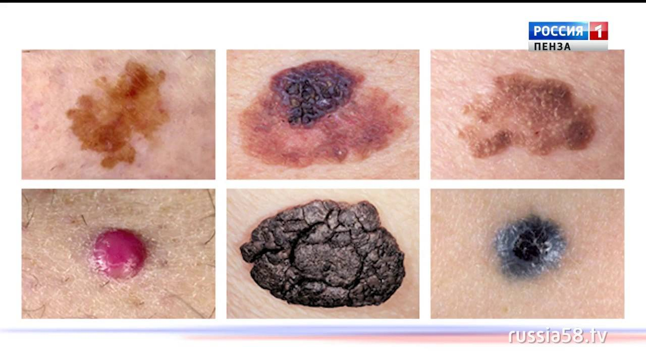 Меланома кожи: что это такое, как выглядит на фото, причины, симптомы, лечение и прогноз