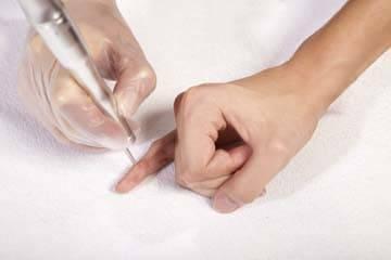 Насколько опасны папилломы для мужчин и женщин