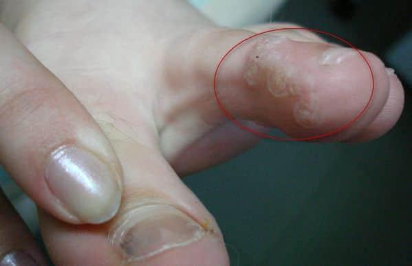 Избавиться от мозоли на пальце ноги: как лечить и удалить народными средствами?