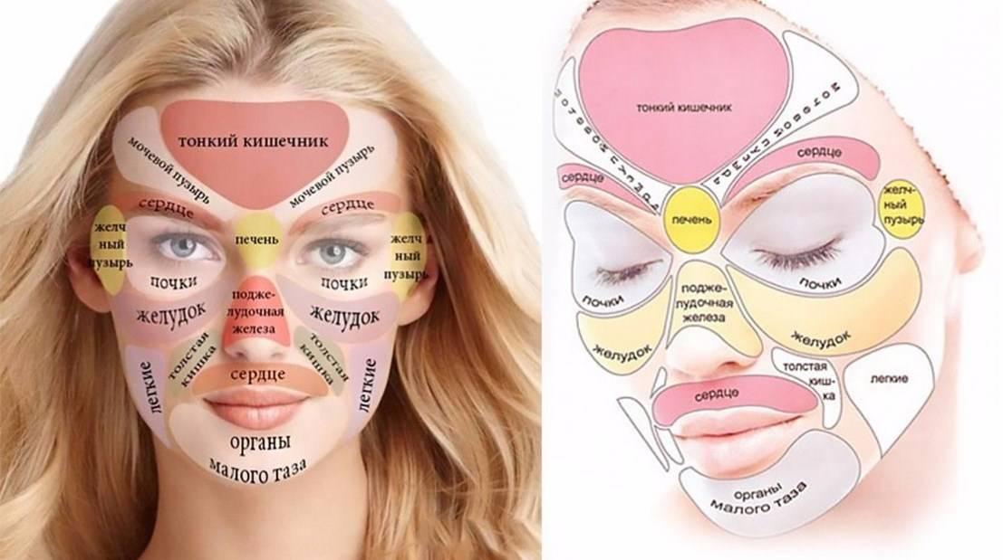 Основные причины появления прыщей на лице перед месячными