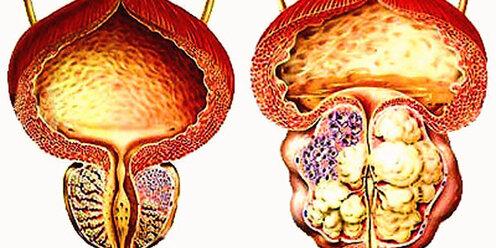 Какие врачи лечит различные формы простатита у мужчин