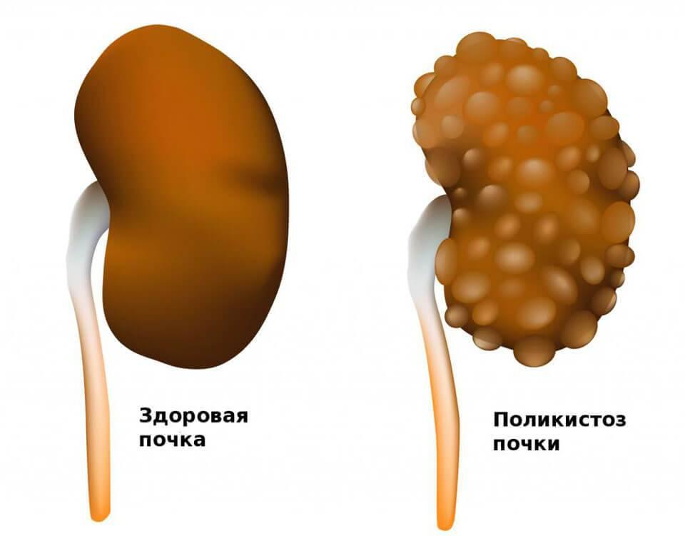 Белок повышен в моче: более 15 причин, норма, как понизить белок, лечение состояния у ребенка, мужчины, женщины и при беременности