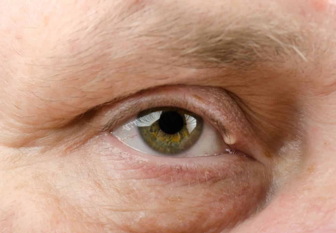 Прыщик на нижнем веке глаза