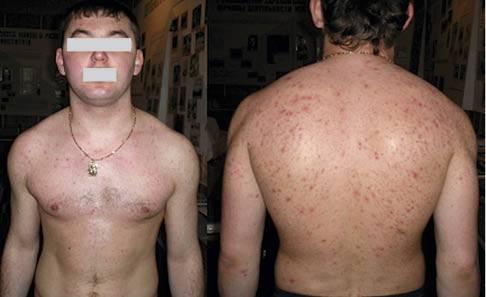 Антибиотики при угревой сыпи на лице