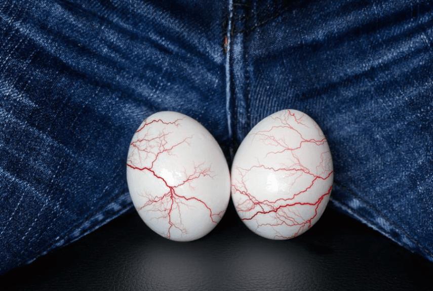 Почему может болеть левое яичко после операции варикоцеле