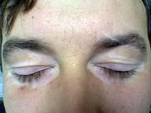 Витилиго - симптомы и лечение