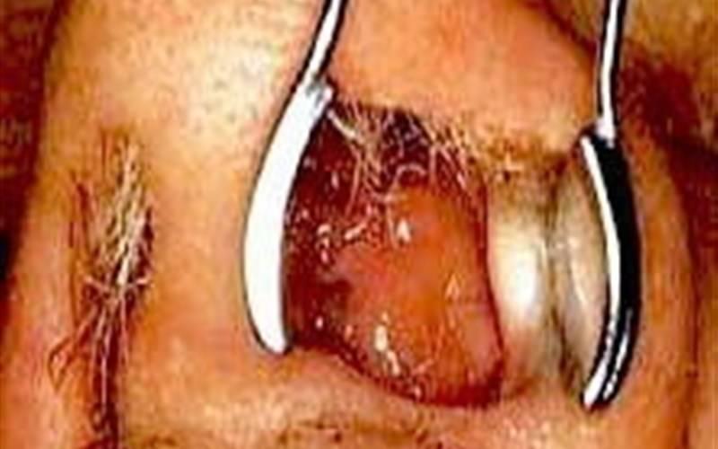 Как убрать переходно-клеточную папиллому носа?