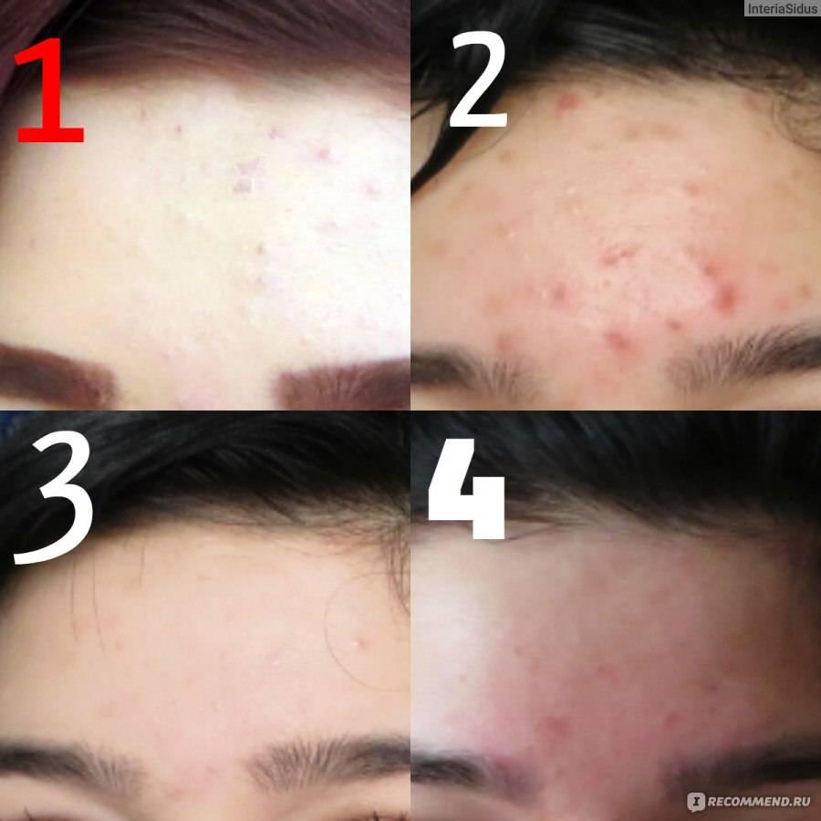 Как избавиться от черных точек на лице