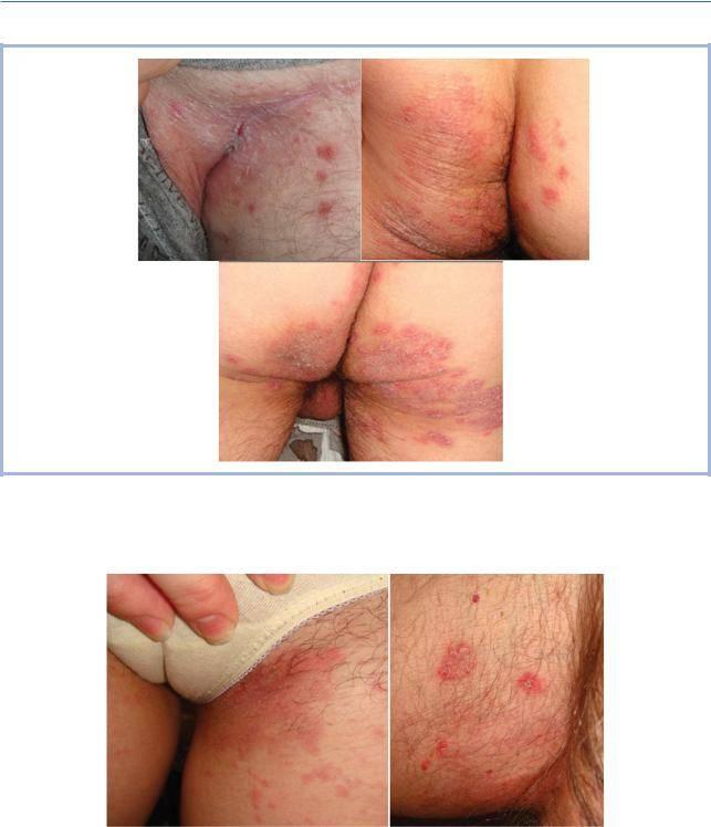 Грибок в паху у мужчин: симптомы и лечение