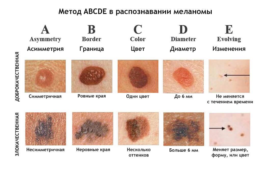 Меланома. причины, симптомы, признаки, диагностика и лечение болезни