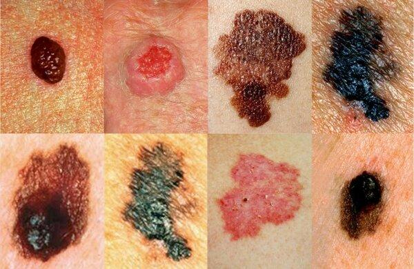 Меланома на начальной стадии: симптомы, прогноз жизни и лечение