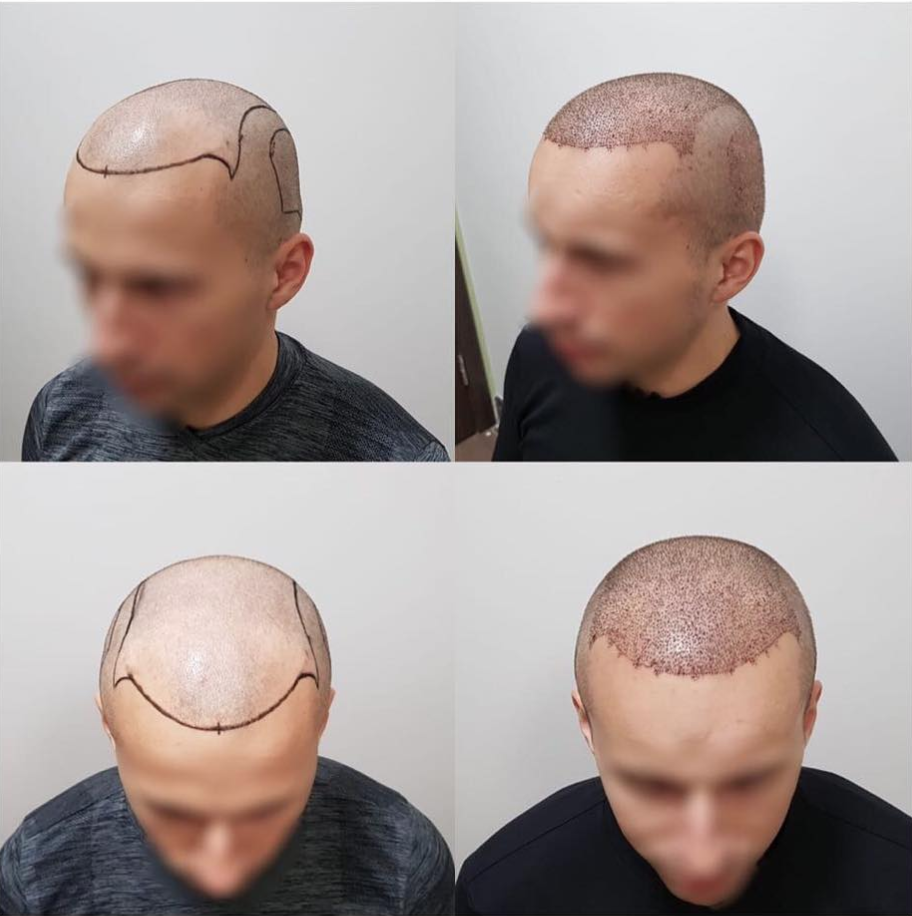 Полезные советы: как быстро отрастить длинные волосы мальчику и мужчине?