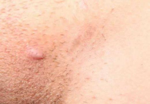 Почему возникают прыщи на половых губах и других участках интимной зоны? правильная диагностика