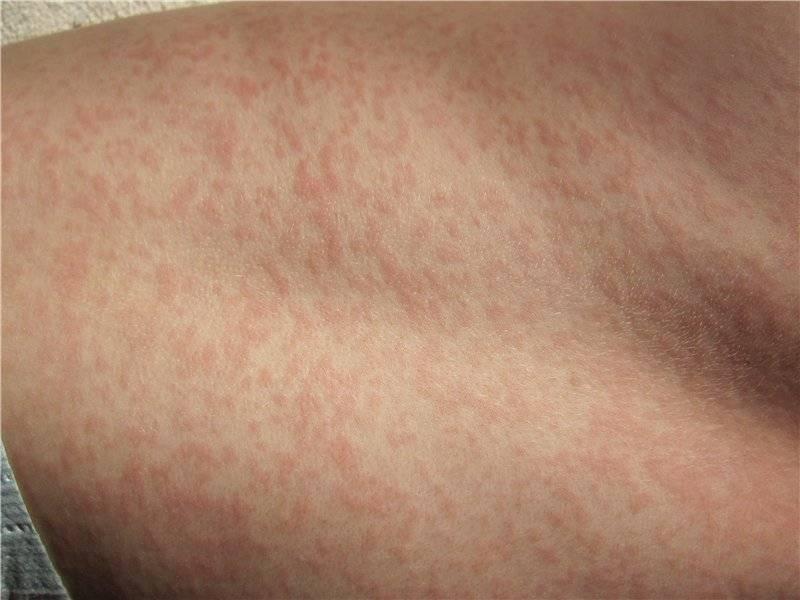 Красные точки на теле — что это, причины, как лечить у взрослых, беременных и детей