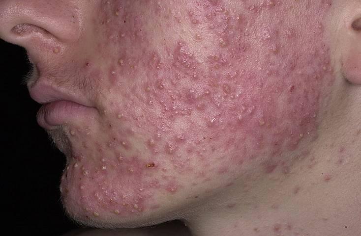 Прыщи подкожные на лице: причины, методы лечения, препараты