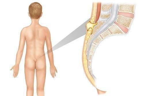 Фурункул на ноге — лечение, причины, симптомы