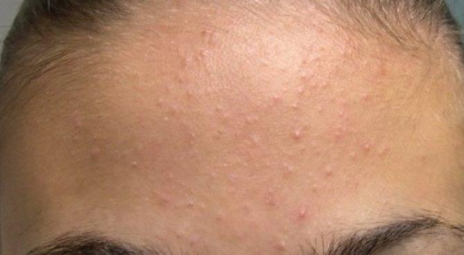 Угревая сыпь у подростков. лечение препаратами, средствами из аптеки, народными, масками, лазером