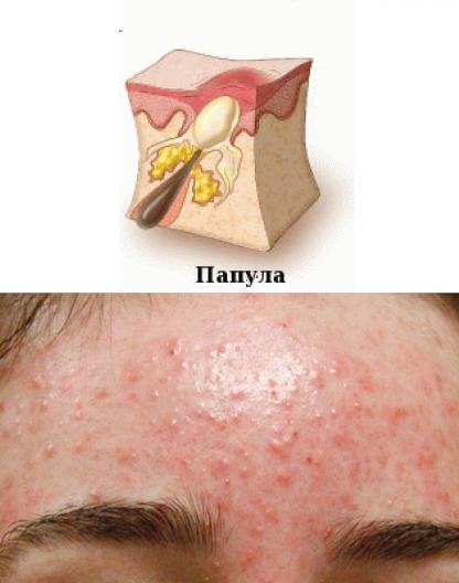 10 видов прыщей и черных точек на носу и 45+ способов лечения
