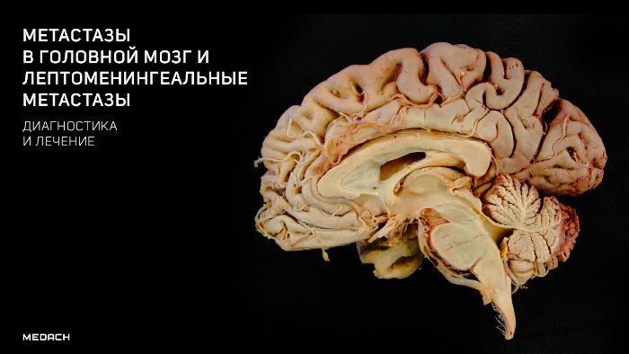Метастазы в головном мозге: симптомы, продолжительность жизни