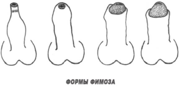 Чем вызвано покраснение крайней плоти и головки полового члена
