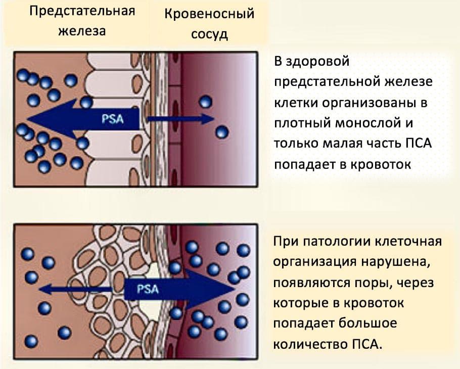 Аденома простаты и уровень пса в крови: норма и изменения