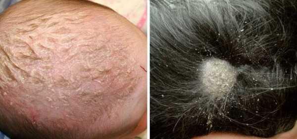 Препараты для лечения себореи на голове